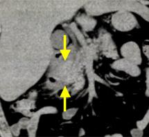 単純CT冠状断像