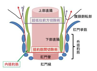 大腸イラスト(木下Dr)