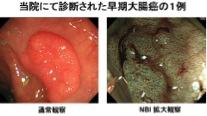 当院にて診断された早期大腸癌の一例