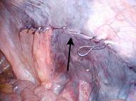 腹膜を吸収糸で閉鎖します。