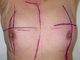術後放射線照射中の乳房