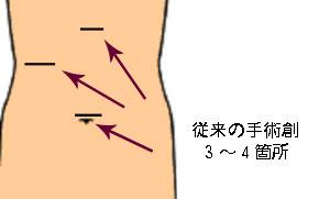 従来の手術創3〜4箇所